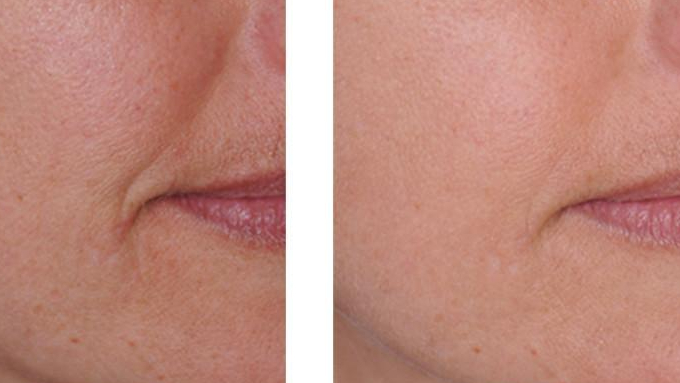 Before-After-Retinol-Serum-Face_1024x1024